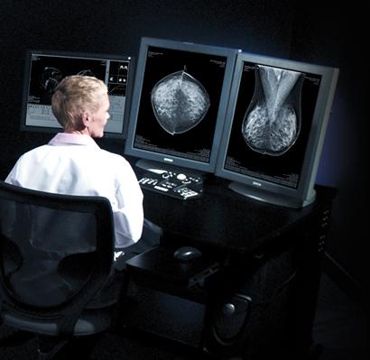 mamografia_plaques